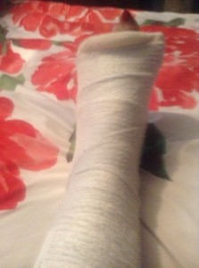 Ali's foot in plaster
