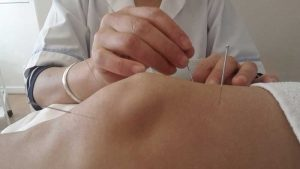 chinese-acupuncture